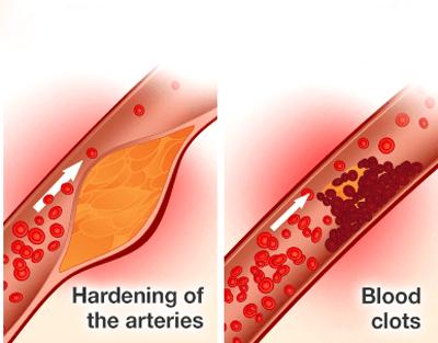 نشانه های حمله قلبی, بیماری سرخرگ کرونر قلب
