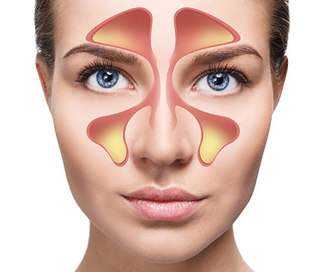 [عکس: sinusitis-treatments1-4.jpg]