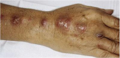 بیماری اسپوروتریکوز, تشخيص بیماری اسپوروتریکوز