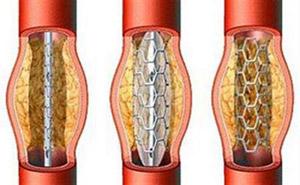 راههای جلوگیری از انسداد روده, علائم انسداد روده چیست