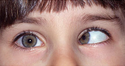 چرا چشم انحراف پیدا میکند