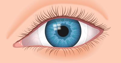 راه درمان نزدیک بینی, درمان طبیعی نزدیک بینی چشم