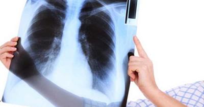 بیماری مزمن انسدادی ریه, سرطان ریه