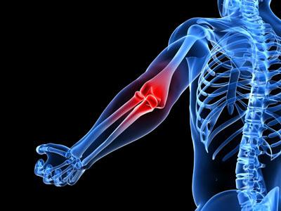 دلایل استخوان درد, علت استخوان درد شدید