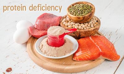 کمبود پروتئین در استخوان ها, نشانه های کمبود پروتئین