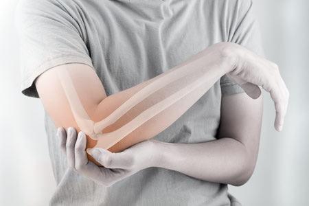 تاندونیت, تاندونیت شانه, درمان تاندونیت روتاتور کاف