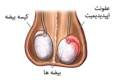 نشانه های سرطان بیضه, درمان سرطان بیضه