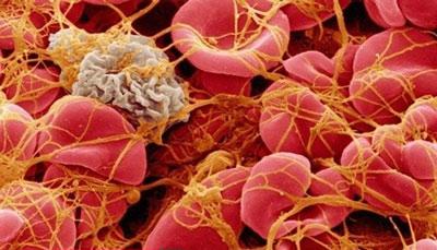 ترومبوسیتوپنی, درمان ترومبوسیتوپنی