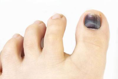 علت و درمان سیاه شدن ناخن پا