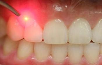 آبسه دندان,علائم آبسه دندان,آبسه دهان و دندان