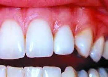 آبسه دندان,درمان آبسه دندان,آبسه کردن دندان
