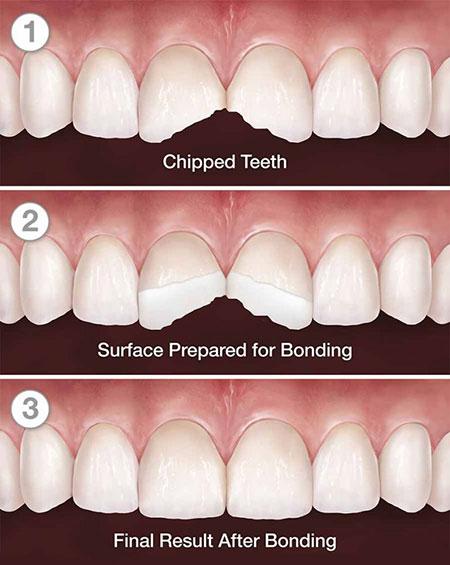 باندینگ (پیوند) دندان چیست؟