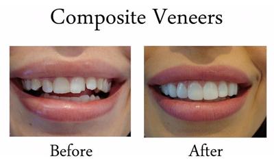 کامپوزیت دندان ونیر, کاربرد کامپوزیت دندان ونیر
