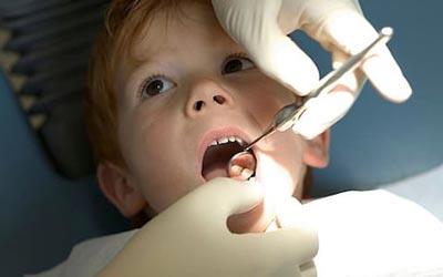 پوسیدگی دندان در کودکان,پوسیدگی دندان,عامل پوسیدگی دندان در کودکان