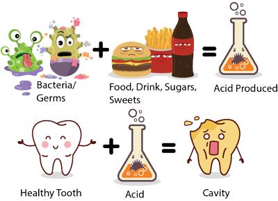 مواد غذايي مفيد در پيشگيري از پوسيدگي دندان, پوسيدگى دندان