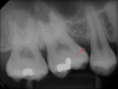 علل پوسیدگی دندان, راههای جلوگیری از پوسیدگی دندان
