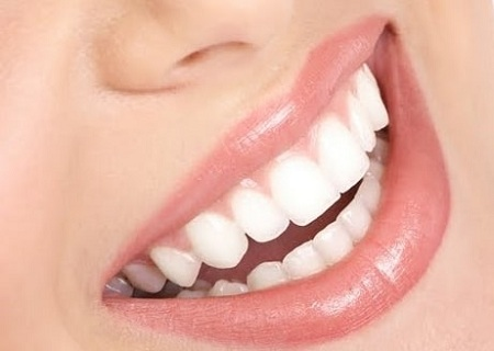 پانسمان موقت دندان چیست, پانسمان دندان, روش پانسمان موقت دندان