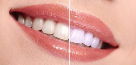 معایب بروساژ دندان