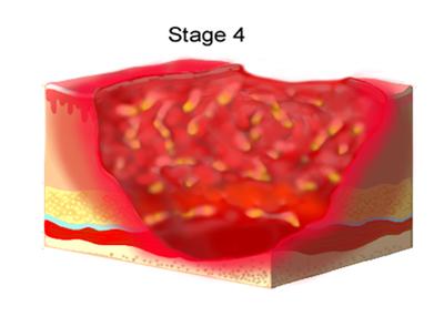 پیشگیری از زخم بستر, راههای درمان زخم بستر