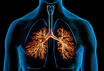 علایم و درمان برونشیت, برونشیت ریه چیست