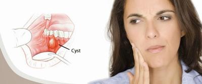تفاوت آبسه و کیست دندان