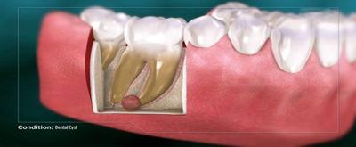 عوارض کیست دندان