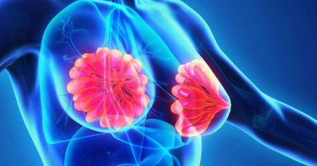 ورم پستان علل و درمان, نحوه تشخیص ورم پستان