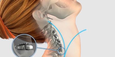 عمل جراحی برای درمان دیسک گردن