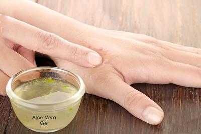درمان سوختگی با آب جوش, درمان سوختگی پوست