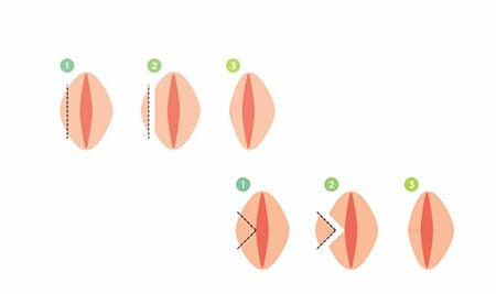 لابیاپلاستی,واژینوپلاستی,واژینوپلاستی چیست