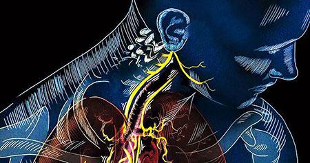 تحریک عصب واگ در درمان افسردگی, راههای تحریک عصب واگ