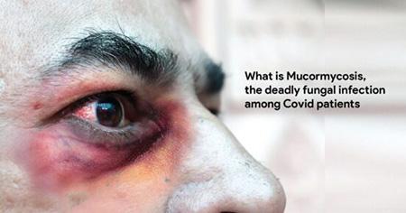 بیماری قارچ سیاه, بیماری قارچ سیاه چیست, بیماری موکورمایکوزیس