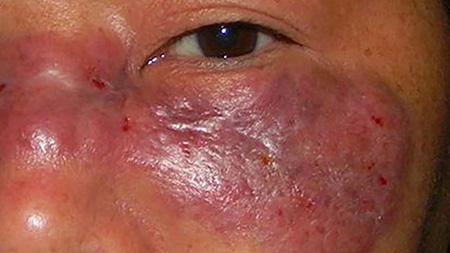بیماری موکورمایکوزیس چیست, همه چیز از بیماری قارچ سیاه یا موکورمایکوزیس, درباره بیماری قارچ سیاه یا موکورمایکوزیس