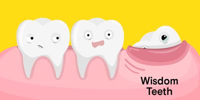 عصب کشی دندان عقل, مراحل جراحی دندان عقل