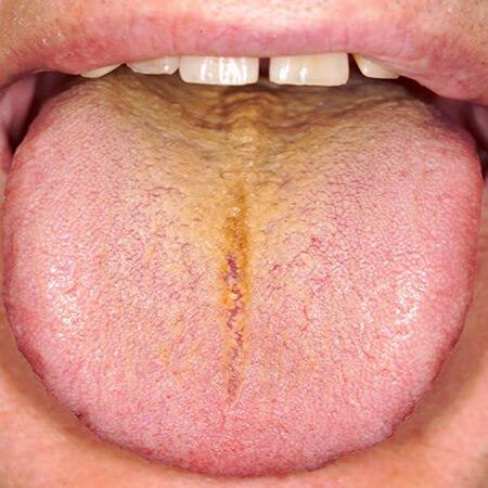 زبان زرد نشانه چیست, علت زردی روی زبان