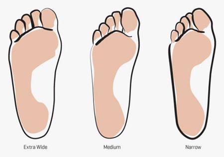 راهنمای انتخاب کفش های مناسب پا, کفش های مناسب فرم های پا
