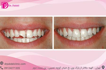 نحوه ی از بین بردن بد رنگی دندان,مراحل قبل از انجام کامپوزیت دندان,کامپوزیت دندان چگونه انجام میشود
