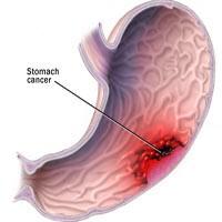 نشانههاي سرطان معده