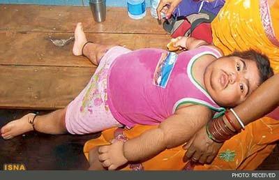 کودکی که در دو سالگی مرد شد+عکس