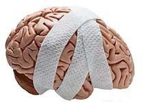 یادگیری بیش از حد,صدمات مغزی,فعالیت مغزی