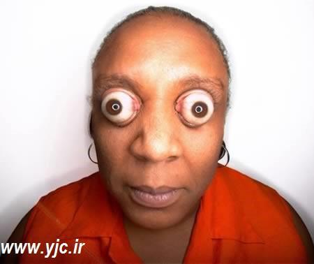 عجیبترین چشم های دنیا