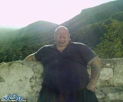 عمل بای پس معده ,چاقترین مرد