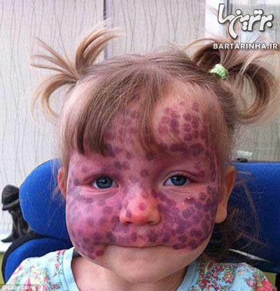 عکس های جالب ازماه گرفتگی های دختر کوچولو