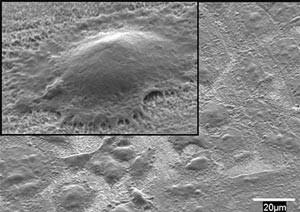 افزایش سرعت ترمیم استخوان با فرش نانوسیمی