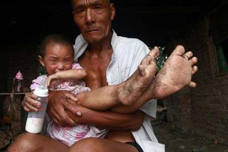 اخبار ,اخبار علمی ,دختری که پاهایش شبیه دستانش است