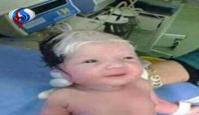 نوزادی که پیرمرد به دنیا آمد!  عکس