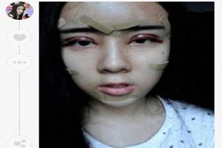 دختر 15 ساله جراحی زیبایی کرد تا شبیه عروسک شود! +تصاویر