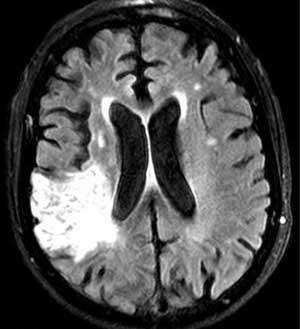 اخبار,اخبار علمی,درمان سکته مغزی با روش جدید