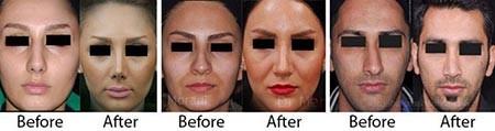 جراحی بینی (رینوپلاستی),جراحی بینی ثانویه