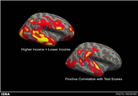بخش مهمی از مغز کودکان فقیر رشد نمیکند